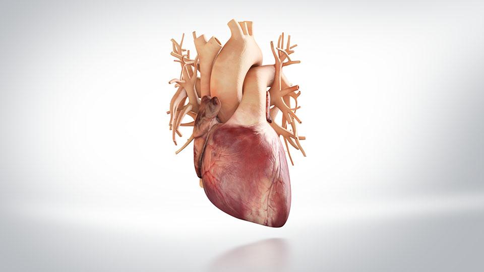 TAVI Herzklappenersatz